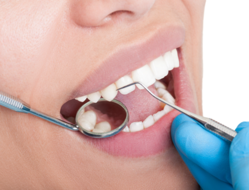 If your gums bleed, you may have Gingivitis.